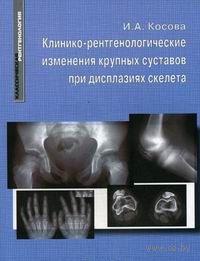 Клинико-рентгенологические изменения крупных суставов при дисплазиях скелета. И. Косова