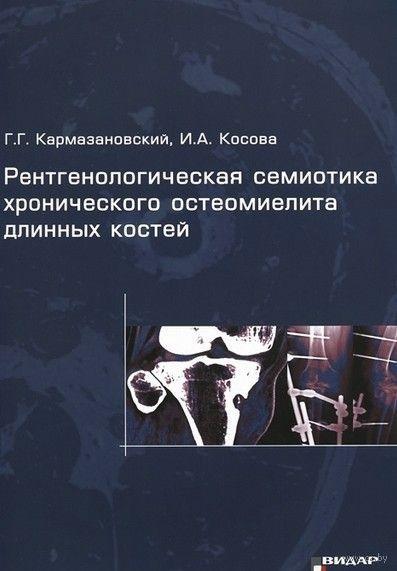 Рентгенологическая семиотика хронического остеомиелита длинных костей. Ирина Косова, Григорий Кармазановский