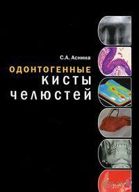 Одонтогенные кисты челюстей — фото, картинка